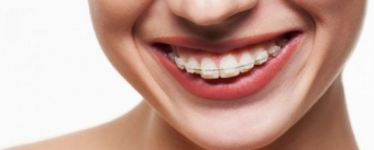 Imagine Aparatul Dentar - Moft sau Necesitate?