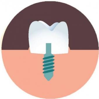 Imagine Oferta Implant dentar + coroana metalo-ceramica - 1700 lei