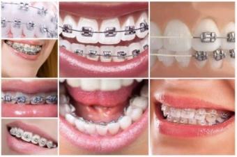 ortodontie bucuresti dentarbre