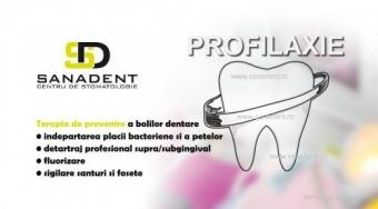 Profilaxia dentara, metode de preventie