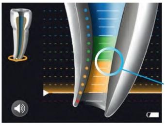 Imagine Importanta apexului locator si a radiografiei retroalveolare in tratamentul de canal