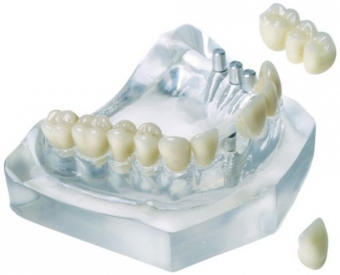 merita un implant dentar?