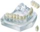 Implantul dentar 100%