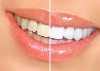 Imagine Reducere albire dentara cu lampa profesionala in cabinet