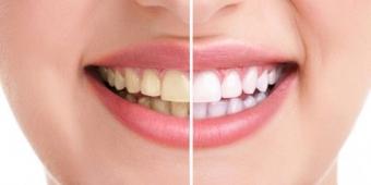 albirea dentara craiova