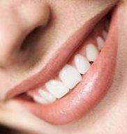 Imagine Estetica dentara - fatele - albirea dentara