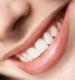 Estetica dentara - fatele - albirea dentara