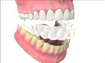 Recomandari pentru albire de dinti acasa cu Opalescence