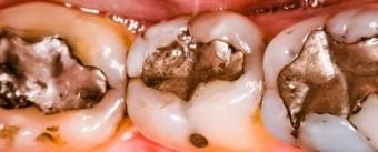 Imagine Amalgamul Dentar: Un risc pentru sanatate?