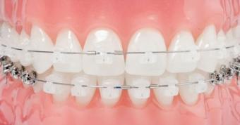 Intrebari ortodont pentru parat dentar