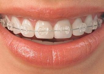 Aparat dentar ceramic fix