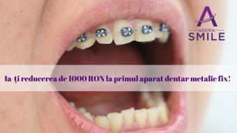 Imagine Aparat dentar metalic fix 3000 lei in loc de 4000 lei