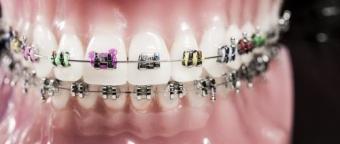 De ce aparat fix fizionomic ? Ce este aparatul dentar fix si de ce trebuie sa-l purtam ?