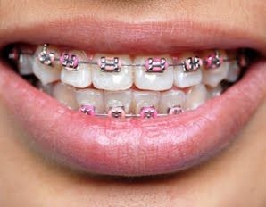 Aparat dentar, indreptare dinti