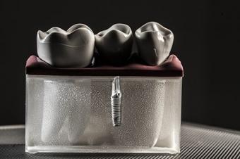 avantaje ale implantului dentar