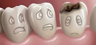 Caria dentara - tratament profilactic