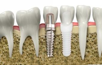 etape parcurse pentru un implant dentar