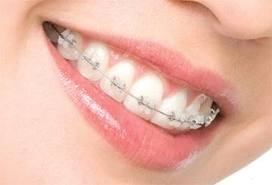 Imagine Consultatie ortodontica gratuita
