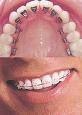 Ce este si ce trateaza ortodontia?