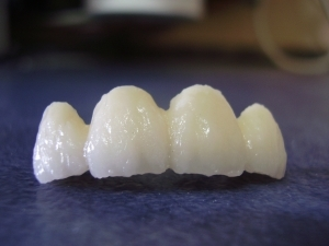 Imagine Despre zirconiu - zirconiul in tehnica dentara