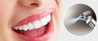 Igienizare dentara prevenire parodontoza