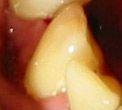 Ce inseamna PREA TARZIU pentru un dinte?