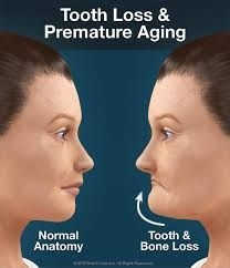 Tratamentele stomatologice de la o varsta inaintata