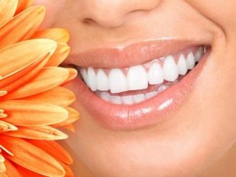 Imagine Oferta 10% la fatete dentare in Otopeni: