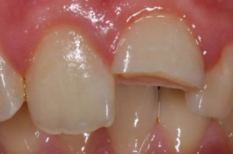 Imagine Intrebari frecvente despre fracturile dentare