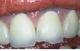 De ce se invineteste gingia din dreptul coroanelor?