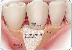 Imagine Grefa de os - Implant