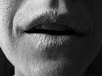 Imagine Gura uscata - cauze, simptome si tratament