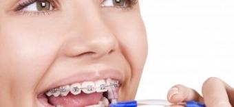 Imagine Igiena dentara pentru purtatorii de aparat dentar