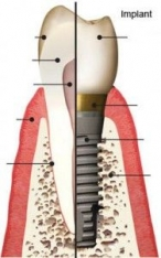 Imagine About dental implants