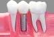 Implant dentar definire,etape si timp de executie,cost