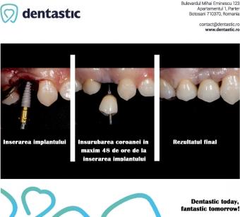 Implant dentar si restaurare dentara