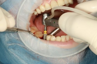 Cost implant dentar pe etape