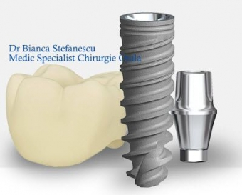 contraindicatii ale implantului dentar