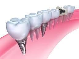 complicatii ale implantului dentar