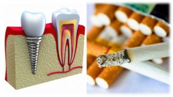 fumatul dauneaza implantului dentar