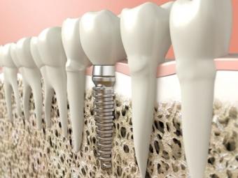 Imagine Implantul dentar definitii,proceduri