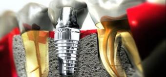 prelungirea duratei de viata a implantului dentar