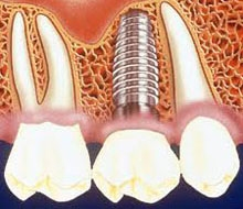 raspunsuri despre implant dentar