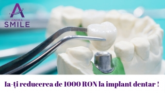 Imagine Implant dentar (1 dinte) 3130 lei in loc de 4130 lei