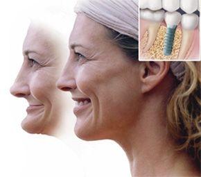 avantaje implant dentar de calitate