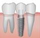 Implantul dentar - pot sa imi pun implant dentar?