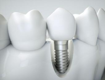 Puntea dentara sau implant