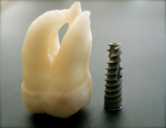beneficii implant dentar