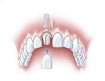 recomandari implant dentar