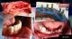 Ce este implantul dentar ?